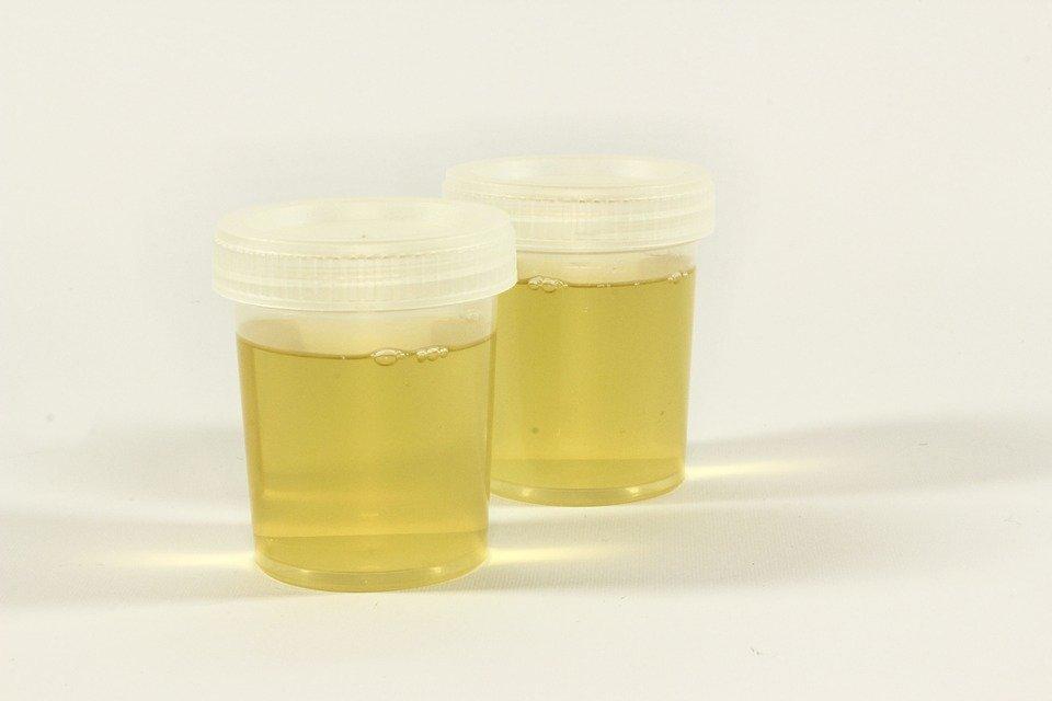 Urine Alcohol Testing