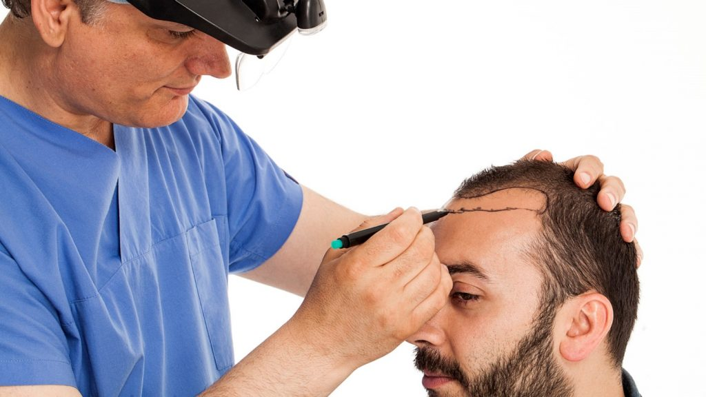 What Type of Hair Transplant is Best For You?