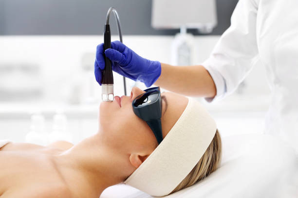 How Often Can You Have a Hair Removal Treatment?
